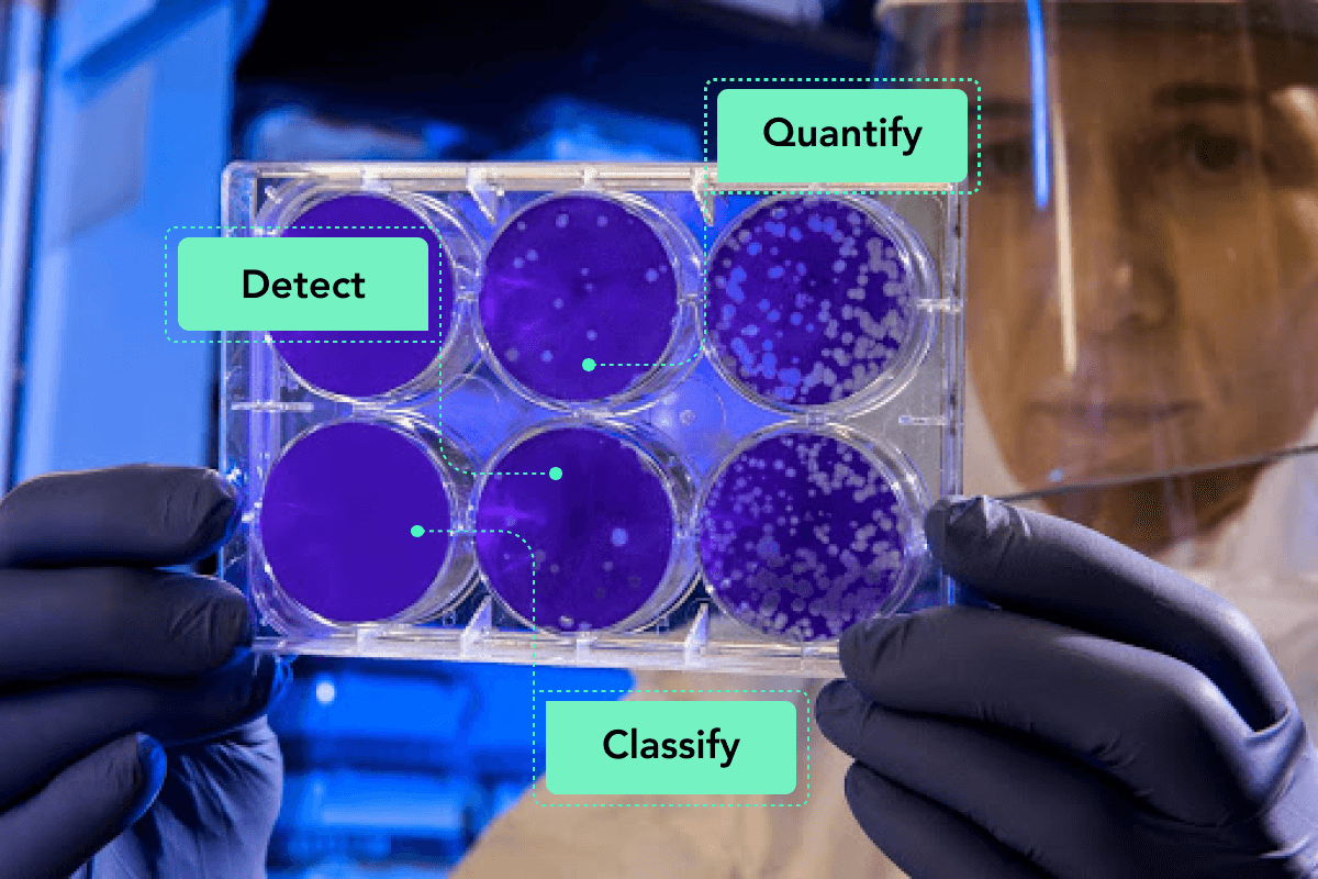 Medical Image Analysis: Bacteria Counting